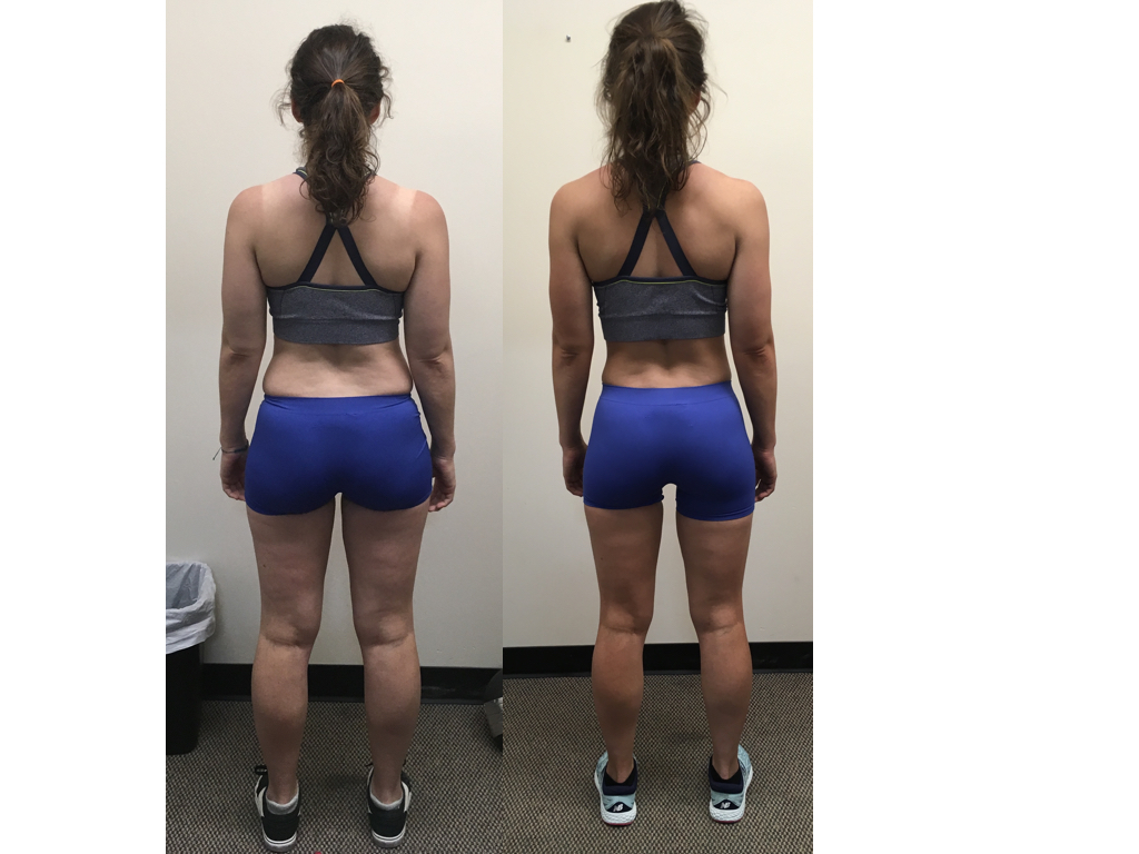 Nora before and after back.001
